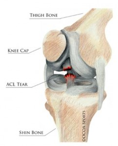 bad acl